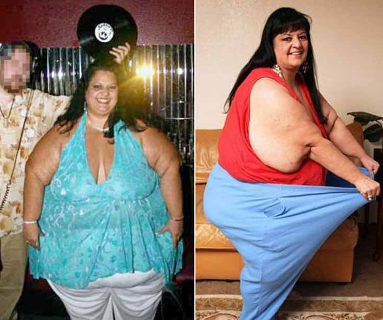 World's heaviest woman sheds 108kg in Indian hospital